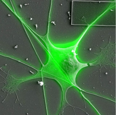 Correlative Confocal and SEM image of a single neuron from the trigeminal ganglion of a mouse. mounted on a silicon wafer. Fluorescent confocal image overlayed on top of the an SEM image. ⠀⠀⠀⠀ ⠀⠀⠀⠀⠀⠀⠀⠀⠀⠀⠀⠀⠀⠀⠀⠀ ⠀⠀⠀⠀⠀⠀⠀⠀⠀⠀⠀⠀⠀⠀⠀⠀ Image courtesy: Christine Brantner - GWU Nanofabrication and Imaging Center ⠀⠀⠀⠀⠀⠀